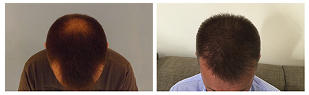 PHAEYDE Clinic Hair Transplant Results